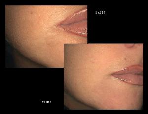 Guna Made Homeopathic Collagen - Skin Care Clinic